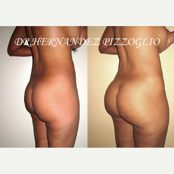 25-34 year old woman treated with Brazilian Butt Lift before 3033996