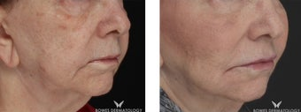 Juvederm Voluma restores volume and lifts the cheeks of 77-year-old patient before 1439314
