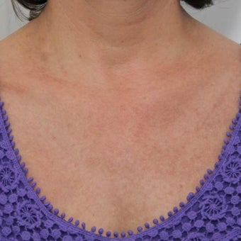 55-64 year old woman treated with Age Spots Treatment after 1569433