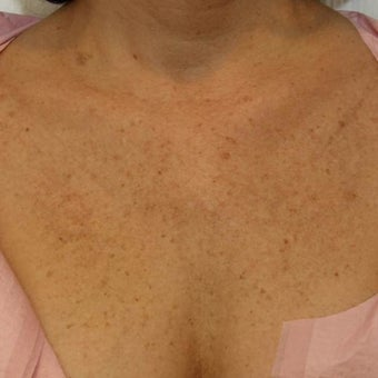 55-64 year old woman treated with Age Spots Treatment before 1569433