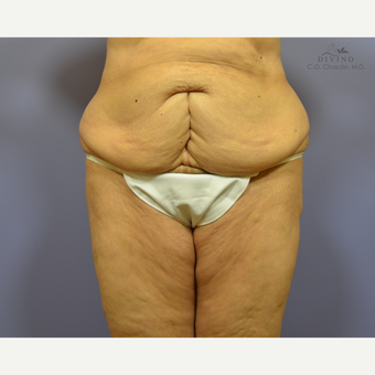 65-74 year old woman treated with Panniculectomy before 3415797