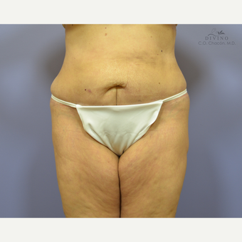 65-74 year old woman treated with Panniculectomy after 3415797