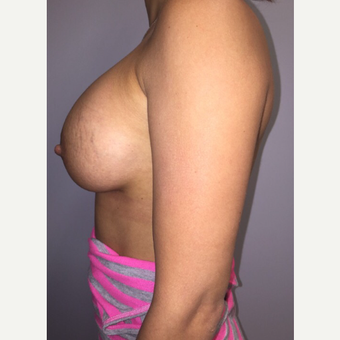 18-24 year old woman treated with Breast Augmentation after 3400716