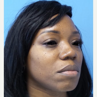 35-44 year old woman treated with African American Rhinoplasty after 3169273
