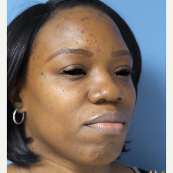 35-44 year old woman treated with African American Rhinoplasty before 3169273