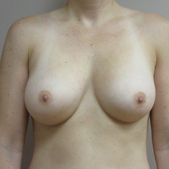 Breast Augmentation after 3615715