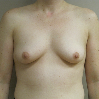 Breast Augmentation before 3615715