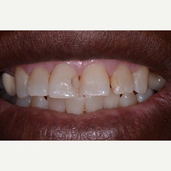 55-64 year old woman treated with Tooth Repair before 2511415