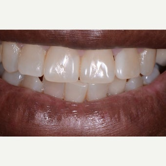 55-64 year old woman treated with Tooth Repair after 2511415