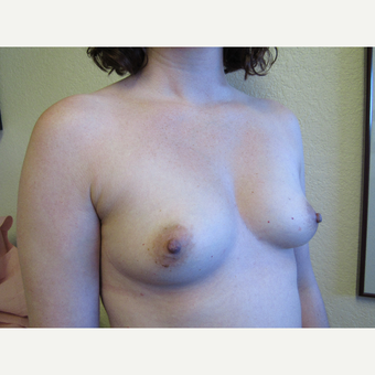 25-34 year old woman treated with Breast Implants before 3407193