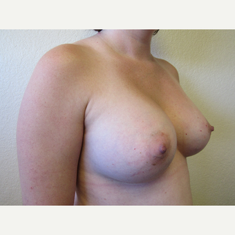 25-34 year old woman treated with Breast Implants after 3407193