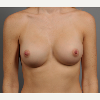 25-34 year old woman treated with Breast Augmentation after 3344407