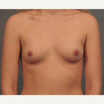 25-34 year old woman treated with Breast Augmentation before 3344407