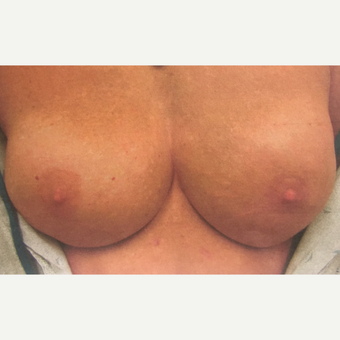 45-54 year old woman treated with Nipple-Sparing mastectomy  and Breast Reconstruction after 3539351