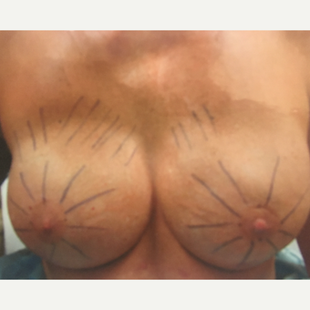45-54 year old woman treated with Nipple-Sparing mastectomy  and Breast Reconstruction before 3539351