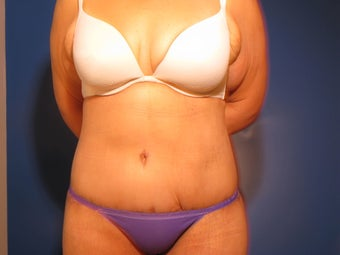 Body Contouring after Massive Weight Loss after 715487