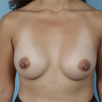 35-44 year old woman treated with Breast Augmentation after 3729950