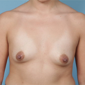 35-44 year old woman treated with Breast Augmentation before 3729950