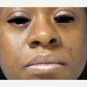 45-54 year old woman treated with African American Rhinoplasty