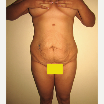 25-34 year old woman treated with Tummy Tuck before 2762836