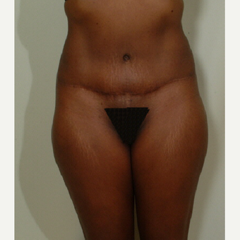 35-44 year old woman treated with Tummy Tuck after 2894088