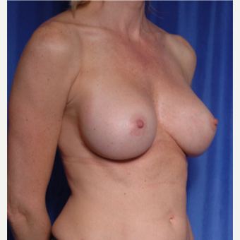 25-34 year old woman treated with Fat Transfer after 3500439