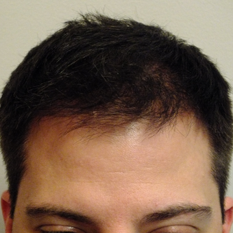 25-34 year old man treated with ARTAS Robotic Hair Transplant after 2830837