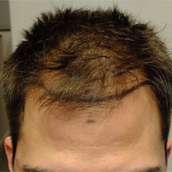25-34 year old man treated with ARTAS Robotic Hair Transplant before 2830837