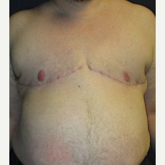 FTM Chest Masculinization Surgery after 1989520