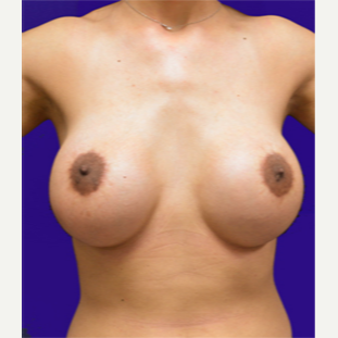 25-34 year old woman treated with Breast Lift with Implants after 3520124