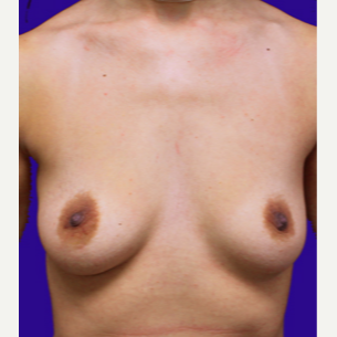 25-34 year old woman treated with Breast Lift with Implants before 3520124
