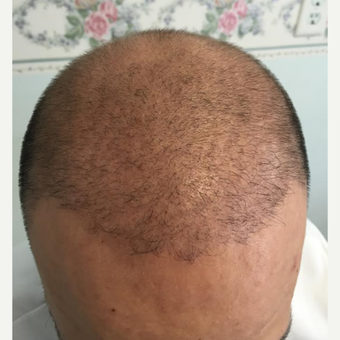 18-24 year old man treated with NeoGraft after 3325613