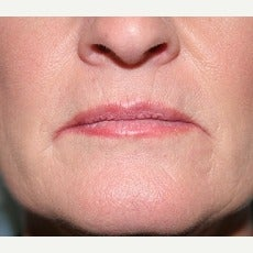 Juvederm before 1725230
