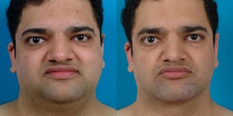 30-year-old man treated with Chin and Jawline Enhancement. before 3265762