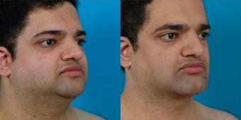 30-year-old man treated with Chin and Jawline Enhancement. after 3265762