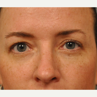 35-44 year old woman treated with Skin Rejuvenation