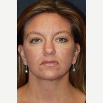 34 year old woman treated with Lower Face Lift after 3629184