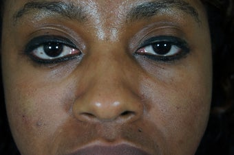 27 year old treated with filler to improve the bags underneath her eyes after 782164