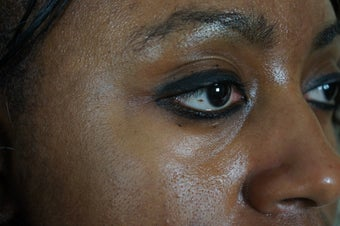 27 year old treated with filler to improve the bags underneath her eyes 782164