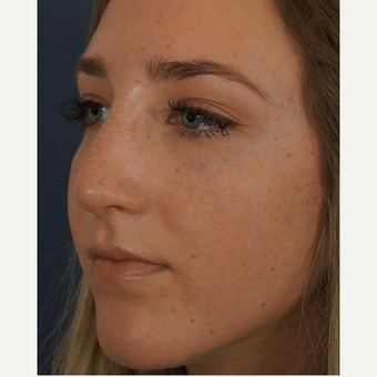 18-24 year old woman treated with Rhinoplasty after 3245060