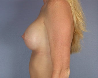 Breast Augmentation after 281406