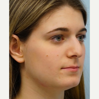 25-34 year old woman treated with Rhinoplasty before 3703418