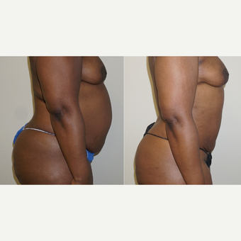 35-44 year old woman treated with Vaser Liposuction before 4583121