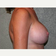 35-44 year old woman treated with Breast Lift after 3339049