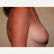 35-44 year old woman treated with Breast Lift before 3339049