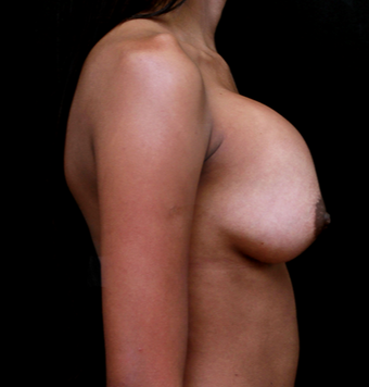 18-24 year old woman treated with Breast Implant Revision before 3735152