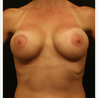 35-44 year old woman treated with Breast Augmentation with Right Areolar Lift after 3099464
