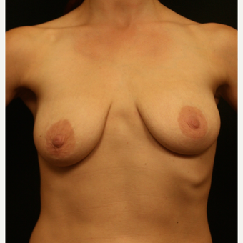 35-44 year old woman treated with Breast Augmentation with Right Areolar Lift before 3099464