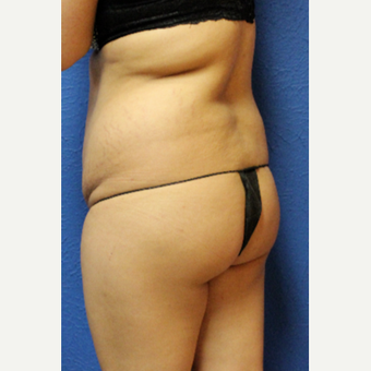 25-34 year old woman treated with Brazilian Butt Lift before 3456715