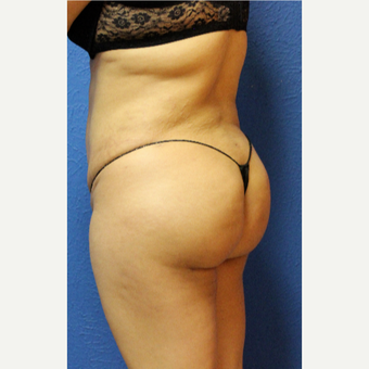 25-34 year old woman treated with Brazilian Butt Lift after 3456715